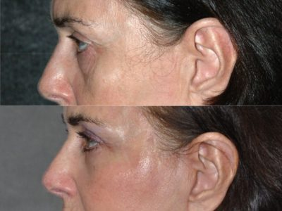 Lower & Upper Eyelid Rejuvenation - Left Side