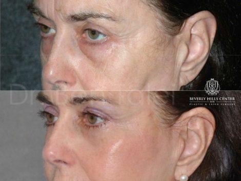 Lower & Upper Eyelid Rejuvenation - Left Side