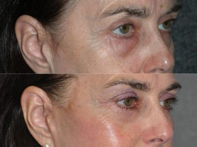 Lower & Upper Eyelid Rejuvenation - Right Side