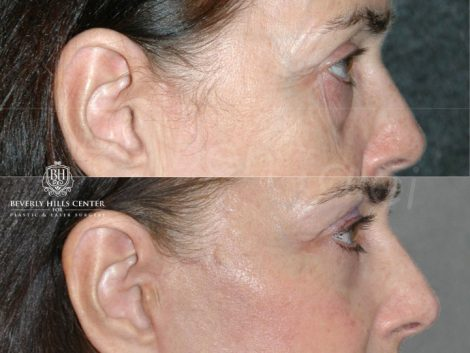 Lower & Upper Eyelid Rejuvenation - Right Side