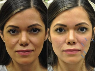 Facial Fillers - Front