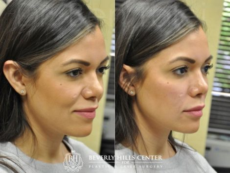 Facial Fillers - Right Side
