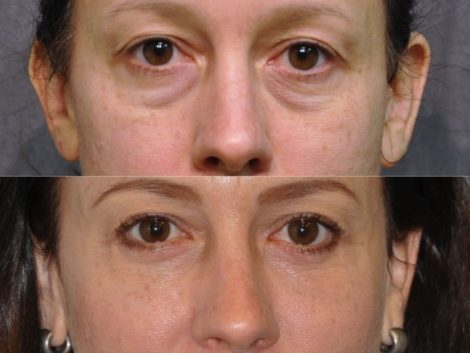 Lower Eyelid Lift - Front
