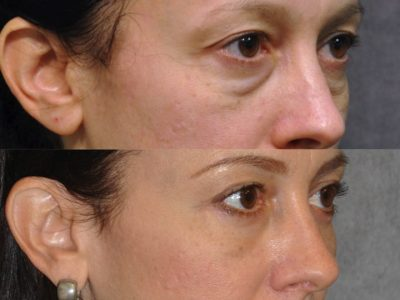 Lower Eyelid Lift - Right Side