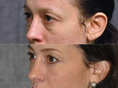 Lower Eyelid Lift - Left Side