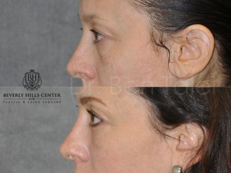 Lower Eyelid Lift - Left Side
