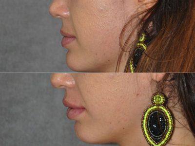 Lip Augmentation - Left Side