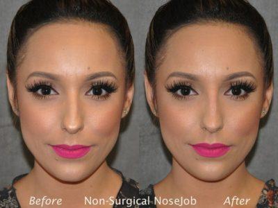 Non Surgical / Liquid Rhinoplasty - Front