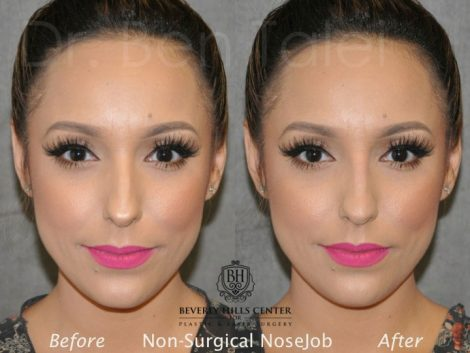 Non Surgical / Liquid Rhinoplasty - Front