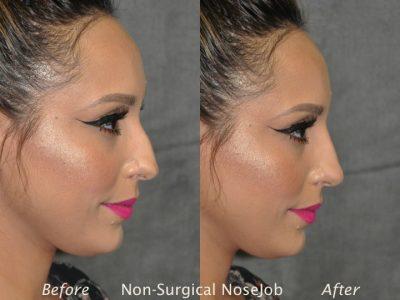 Non Surgical / Liquid Rhinoplasty - Right Side