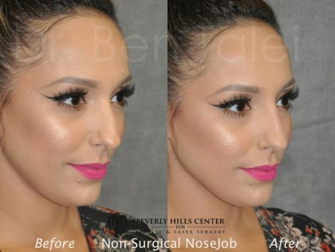 Non Surgical / Liquid Rhinoplasty - Right Side