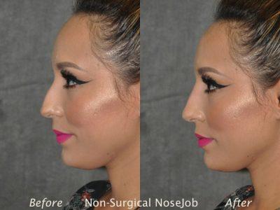 Non Surgical / Liquid Rhinoplasty - Left Side
