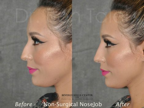 Non Surgical / Liquid Rhinoplasty - Left Side