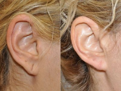 Gauge Piercing / Stretched Ear Lobe Repair
