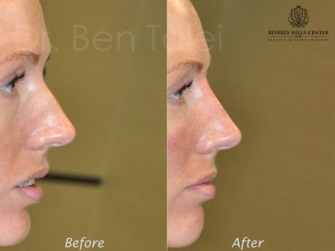 Non Surgical Rhinoplasty / Nosejob - Right Side