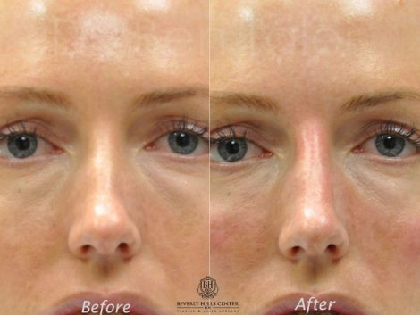 Non Surgical Rhinoplasty / Nosejob - Front