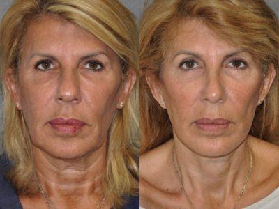 AuraLyft, Lower Eyelid Rejuvenation & Minimally Invasive Rhinoplasty - Front