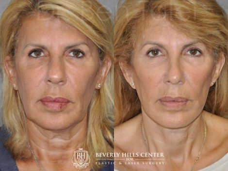AuraLyft, Lower Eyelid Rejuvenation & Minimally Invasive Rhinoplasty - Front