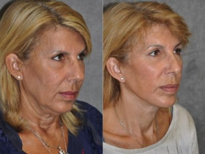 AuraLyft, Lower Eyelid Rejuvenation & Minimally Invasive Rhinoplasty - Right Side