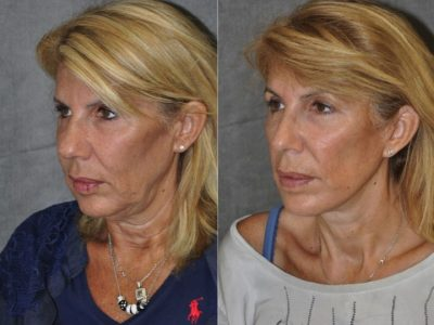 AuraLyft, Lower Eyelid Rejuvenation & Minimally Invasive Rhinoplasty - Left Side