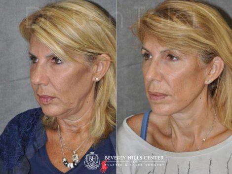 AuraLyft, Lower Eyelid Rejuvenation & Minimally Invasive Rhinoplasty - Left Side