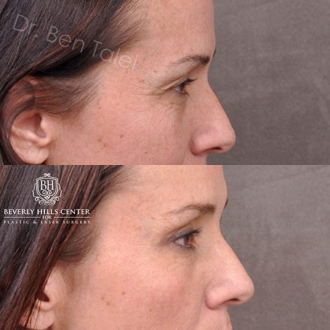 Upper Blepharoplasty and Endoscopic Brow Lift - Right Side