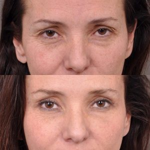 Upper Blepharoplasty and Endoscopic Brow Lift - Front