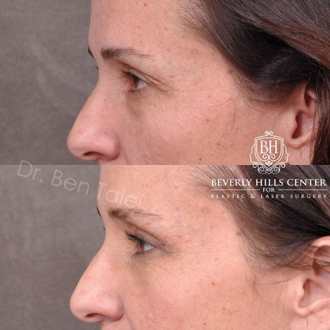 Upper Blepharoplasty and Endoscopic Brow Lift - Left Side