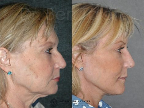 Liquid (Injectable Filler) Rhinoplasty - Right Side