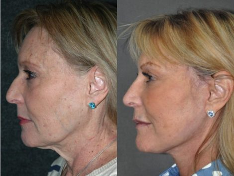 Liquid Rhinoplasty - Left Side
