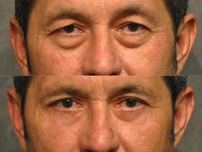 Upper & Lower Eyelid Rejuvenation - Front