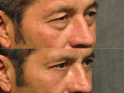 Upper & Lower Eyelid Rejuvenation - Right Side