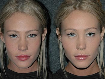 Beverly Hills Center Female Patient Before and After Non-surgical Cheek Procedure