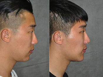 Beverly Hills Center Male Patient Before and After Chin Procedure