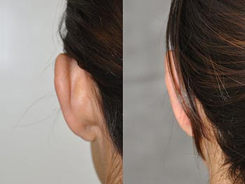 EAR - Before and After Gallery