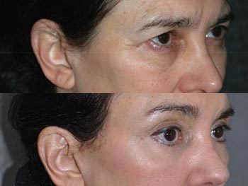 Beverly Hills Center Female Patient Before and After Brow Lift and Eye Rejuvenation Procedure