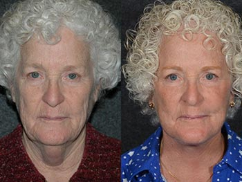 Beverly Hills Center Female Patient Before and After Face and Neck Rejuvenation Procedure