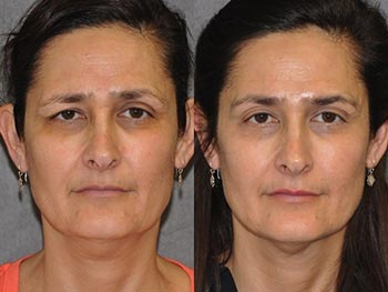 Beverly Hills Center Female Patient Before and After Facial Procedure