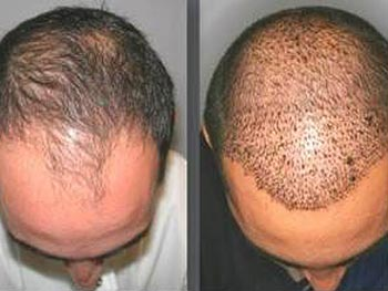 Hair Transplant & Hairline Lowering - Before and After Gallery
