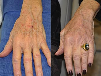 Beverly Hills Center Female Patient Before and After Hand Rejuvenation