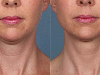 KYBELLA - Before and After Gallery
