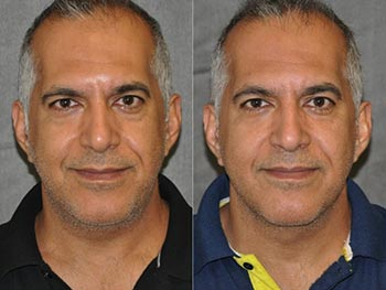 Beverly Hills Center Male Patient Before and After Laser Facelift