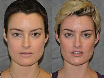 Beverly Hills Center Female Patient Before and After Lip Procedures