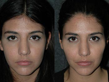 Beverly Hills Center Female Patient Before and After Non-surgical Facial Procedures