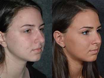 Beverly Hills Center Female Patient Before and After Nose Procedure