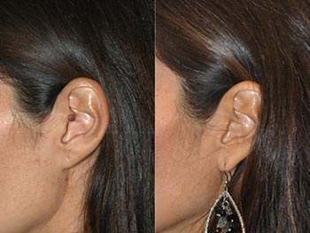Beverly Hills Center Female Patient Before and After Mole Removal