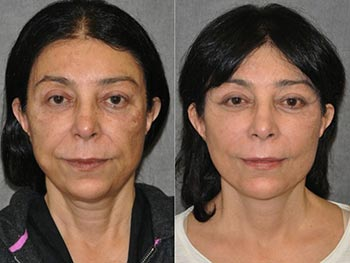 Beverly Hills Center Female Patient Before and After Skin Rejuvenation Procedures