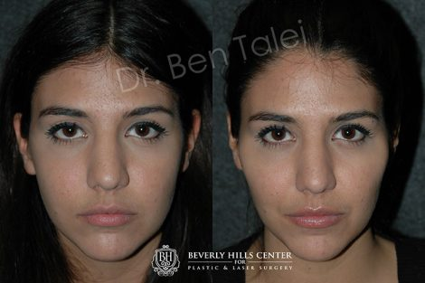 Cheek Augmentation - Front