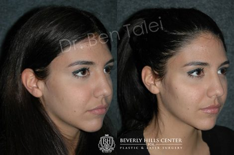 Cheek Augmentation - Right Side