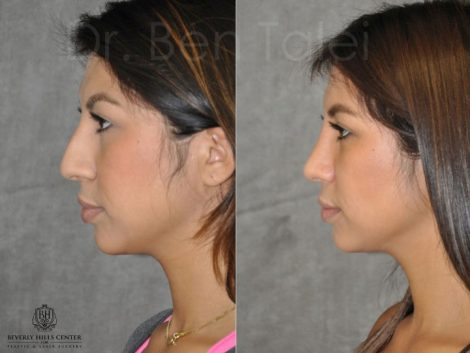 Natural Cosmetic Rhinoplasty